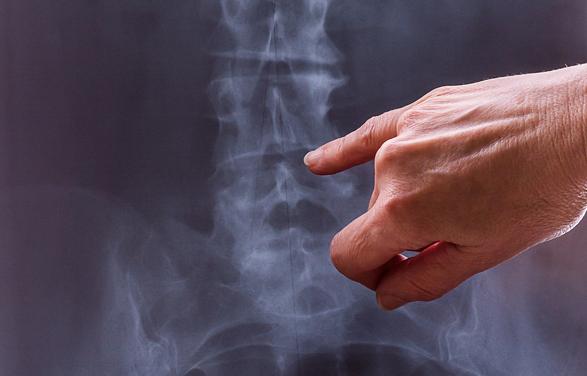 Osteoporosis-Image